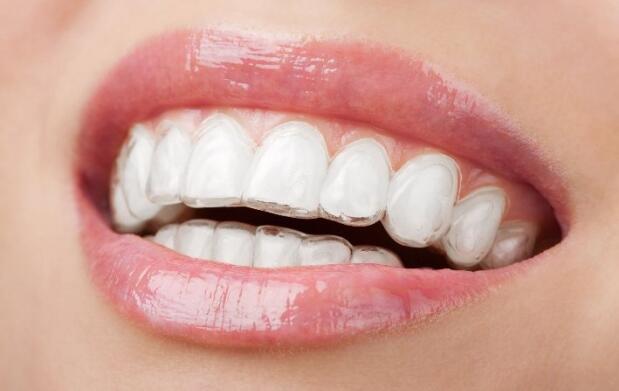 Férula dental de descarga blanda