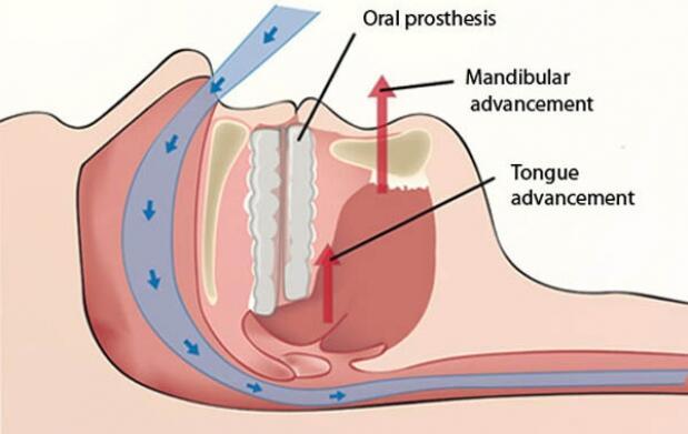 Férula antirronquidos