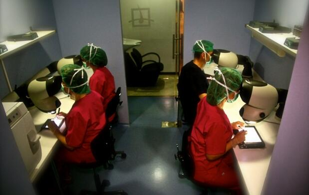 Microtransplante capilar al 60%