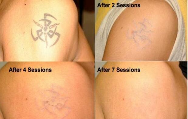 1 ó 3 sesiones de eliminación láser de tatuajes